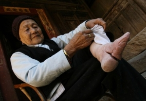 Photograph of Zhou Guizhen, a Chinese woman with bound feet (2007).