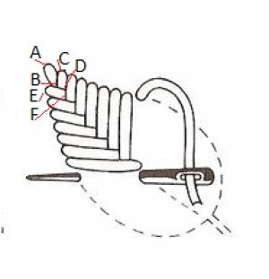 Schematic drawing of the fishbone stitch